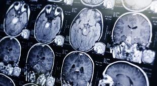 Tajemnicze zaburzenia mózgu w kanadyjskiej prowincji Nowy Brunszwik