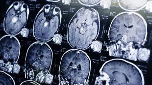 """Zaburzenia mózgu podobne do choroby szalonych krów. """"To jest coś nowego, a my musimy dowiedzieć się, co to jest"""""""