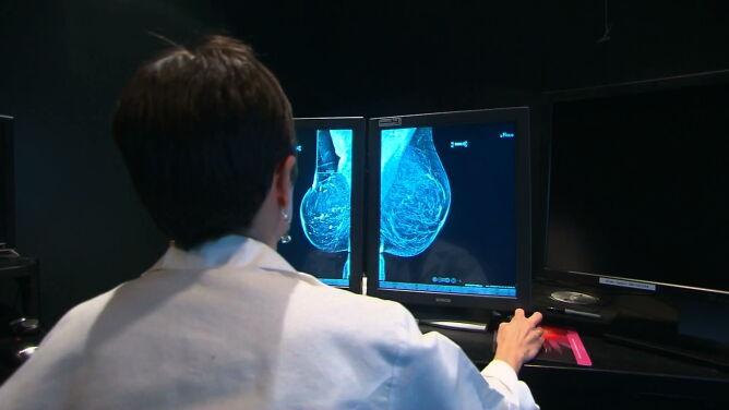 Sztuczna inteligencja może skuteczniej niż lekarz zdiagnozować raka piersi